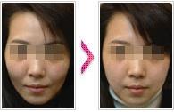 玻尿酸面部塑形成功案例