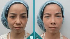 面部填充术成功案例