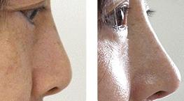 鼻尖整形手术成功案例