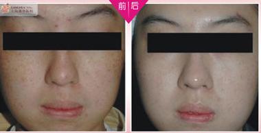 上海港华中式点滴祛斑术案例