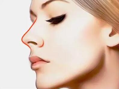你更适合哪种隆鼻方法呢?