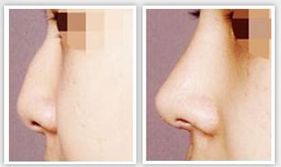 武汉中爱达拉斯综合隆鼻术案例