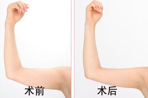 武汉中爱韩式分层手臂吸脂紧肤术案例