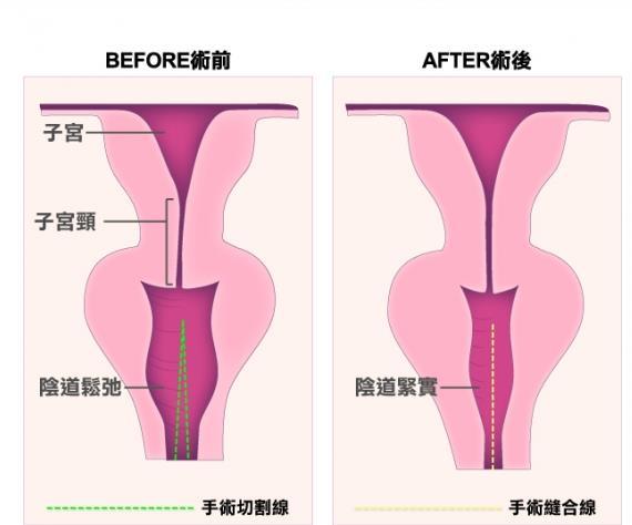 长沙协雅医疗美容阴道紧缩手术案例