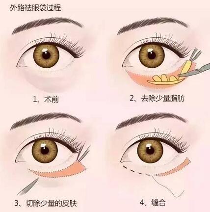 眼袋不仅显老,还对健康有害