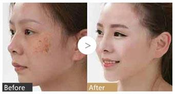 北京艺星黄褐斑皇室疗法手术案例