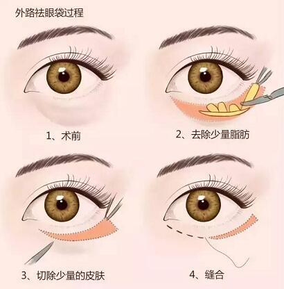 眼袋类型不一样,其祛除方法也不同