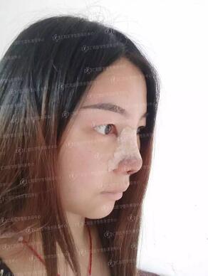 仁和整形免费眼鼻模特