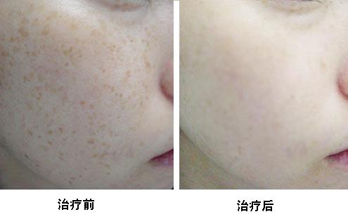 北京莫琳娜光龄360祛斑美肤系统手术案例
