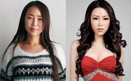 北京彤美360度全面线雕轻龄手术案例