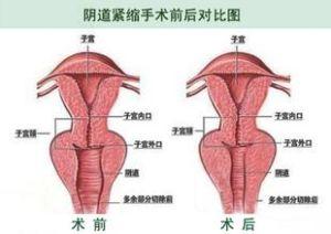 北京宝岛青春私密内雕手术案例