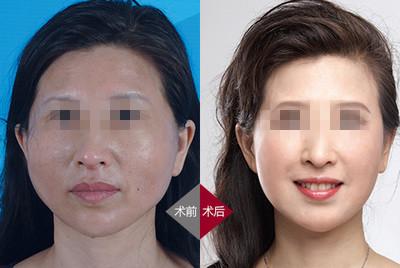 北京宝岛面部逆时光童颜手术案例