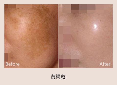 北京新面孔RubyStar+红T星祛黄褐斑手术案例