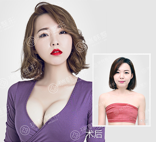 2017瑞韩美胸节暨粉红丝带运动