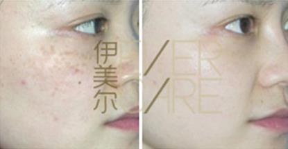 济南伊美尔韩式综合激光祛斑术案例