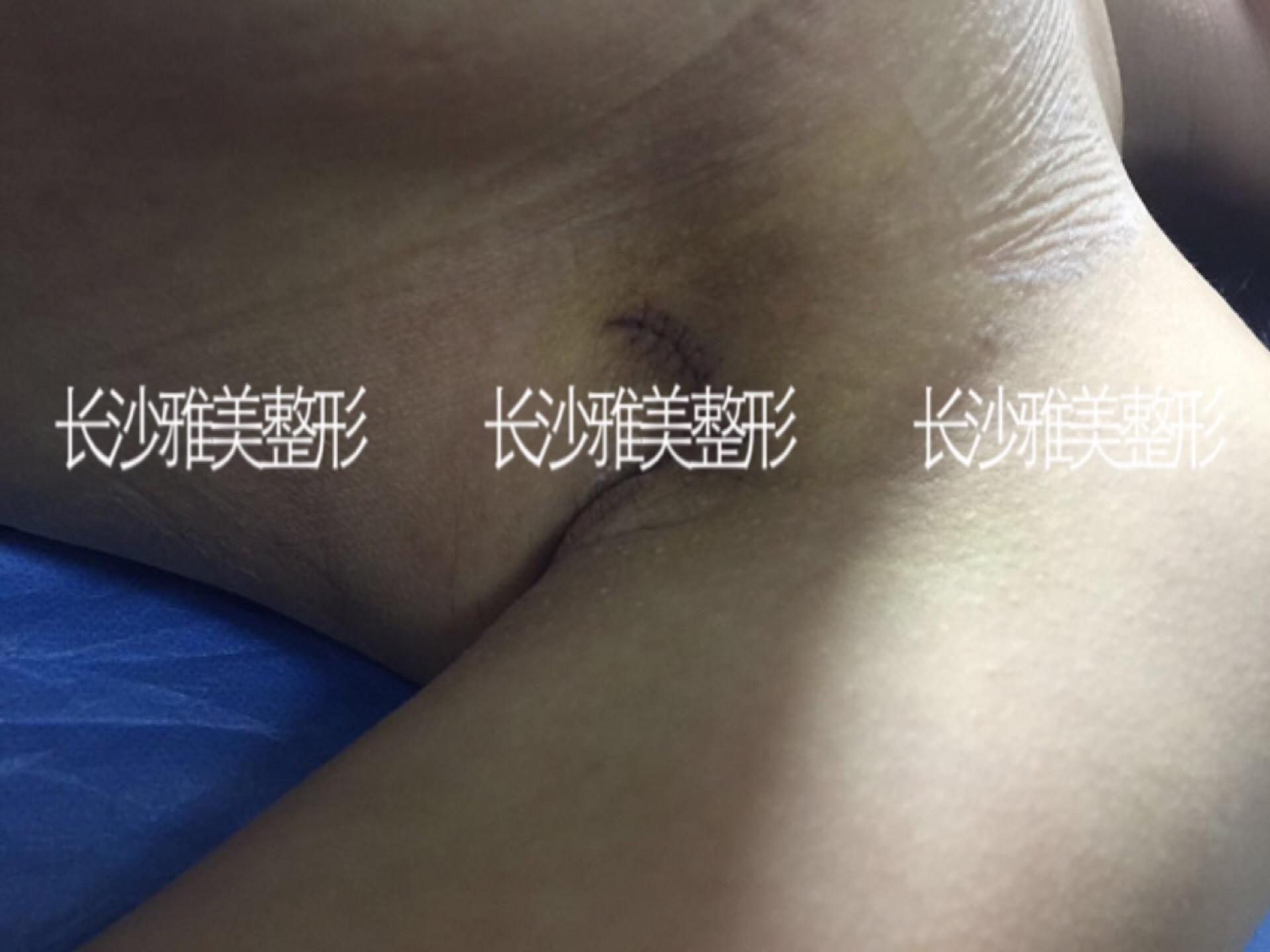 假体隆胸拥有美丽身材