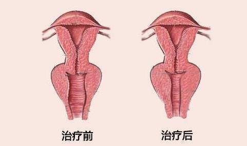 山东齐鲁高质量阴道紧缩术案例