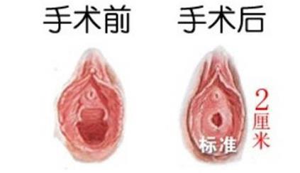 山东齐鲁还原修复处女膜术案例
