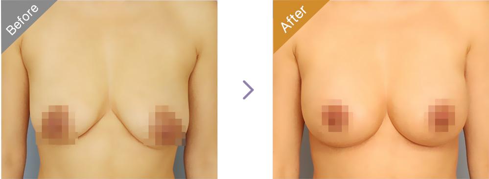 北京伊美尔健翔仿生隐形自然隆胸手术案例