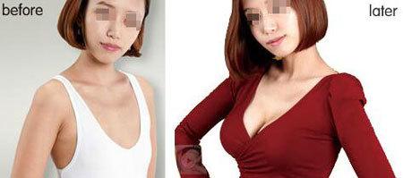 北京叶子数字化动感丰胸手术案例
