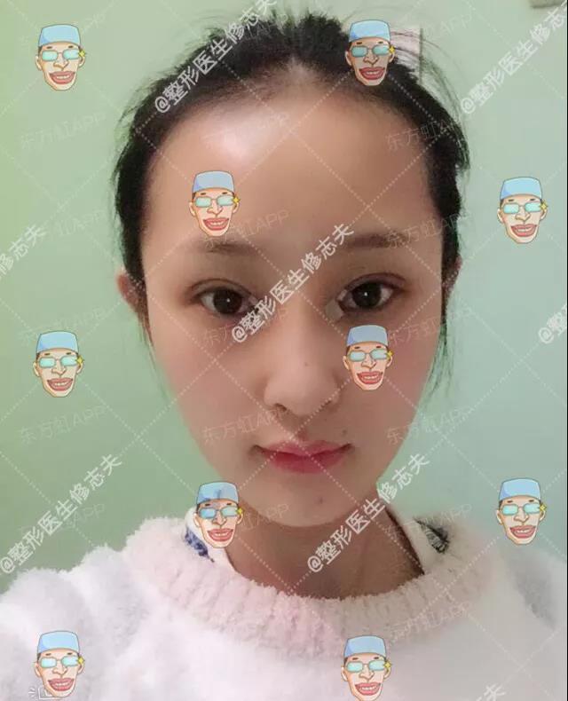 鼻部修复的过程:从沮丧煎熬到欣喜满足