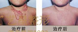 济南艺星艺术疤痕软化针术案例