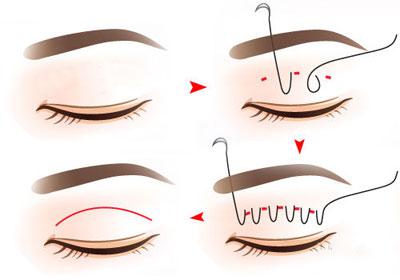 你的双眼皮手术有肉条吗