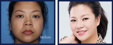 面部年轻化,解决衰老