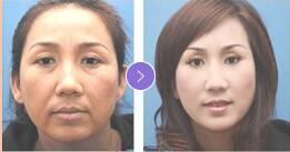 宁波美苑TM-8除皱紧肤+面部轮廓雕塑术案例