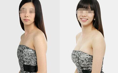 北京国济中医六点植入法自体脂肪移植手术案例