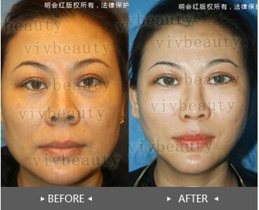 北京明会红3D少女线雕手术案例