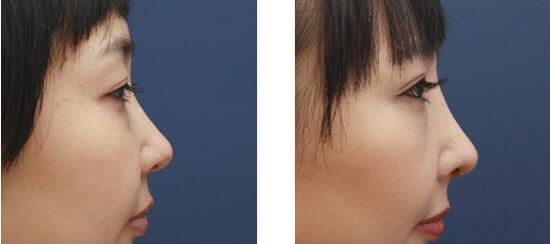 象山华美翘美鼻术案例