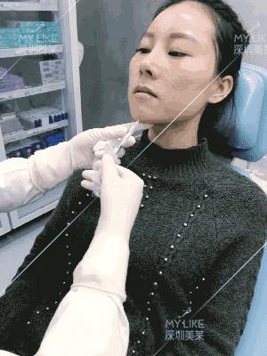 玻尿酸填充后,30岁阿姨变20岁少女