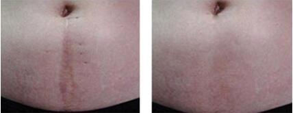 北京煤炭总医院剖腹产疤痕分型修复手术案例