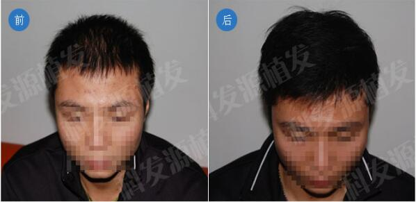 北京科发源ST自体活细胞无痕植发手术案例