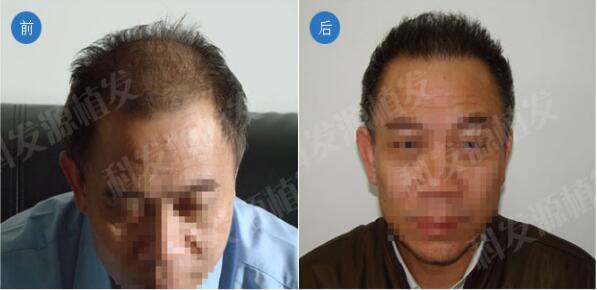 北京科发源PSE无痕植发手术案例