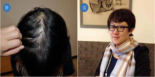 北京科发源T+E纳米微痕植发手术案例