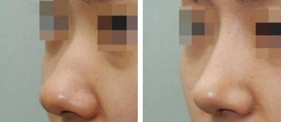 济南第一人民自然美感自体软骨隆鼻术案例