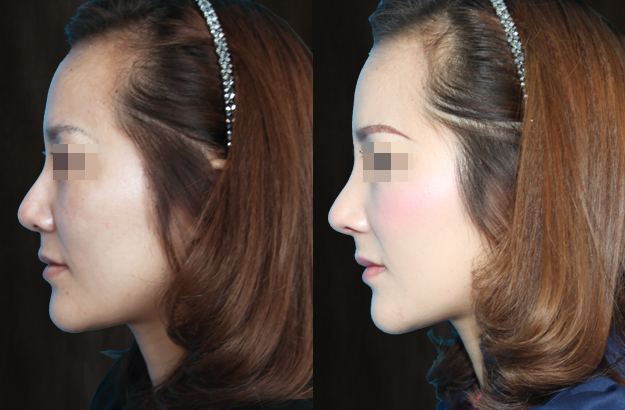 河北巍名仕多维立体隆鼻手术案例