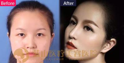 河北蓝山自然美瞳双眼皮手术案例