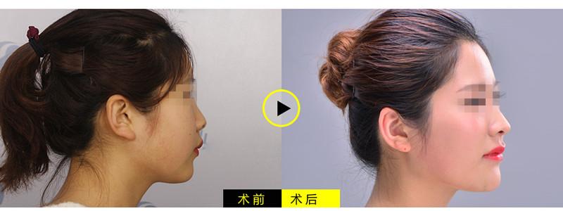 河北蓝山3A综合隆鼻手术案例