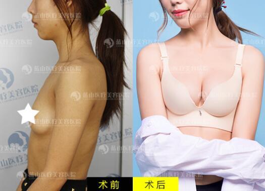 河北蓝山艺术脂肪丰胸手术案例
