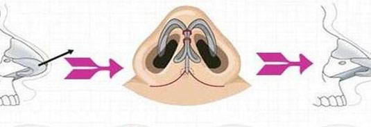 玻尿酸隆鼻后会出现皮肤坏死吗