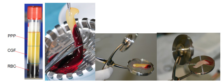 CGF在创面修复及组织再生中的临床应用