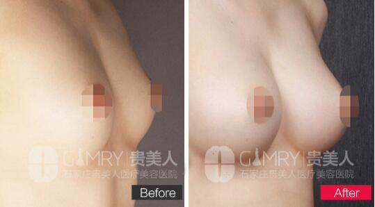 河北贵美人2C无痕丰胸手术案例