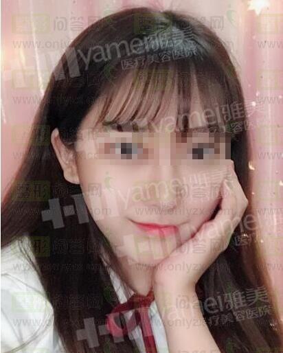 一个通过瘦脸针来变V脸的妹子,美哒哒