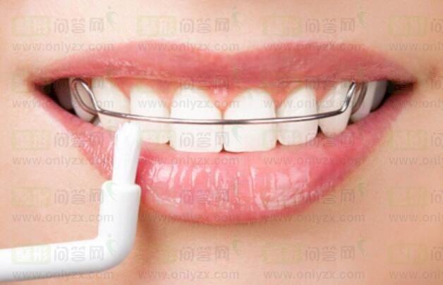 2019年牙齿整形优惠活动春节季