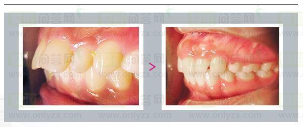 蜕变项目:牙齿正畸!