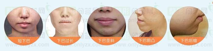 两种丰下巴方法,总有一种适合您