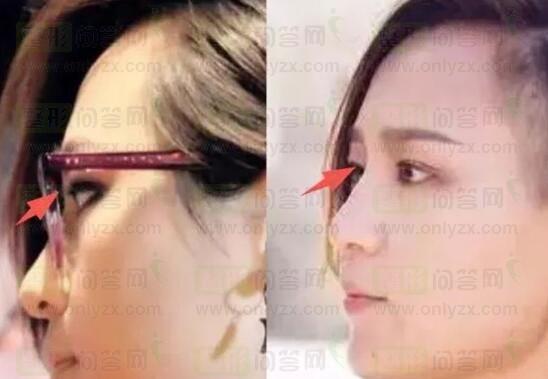 女星们都在打的瘦脸针,效果到底有多好?